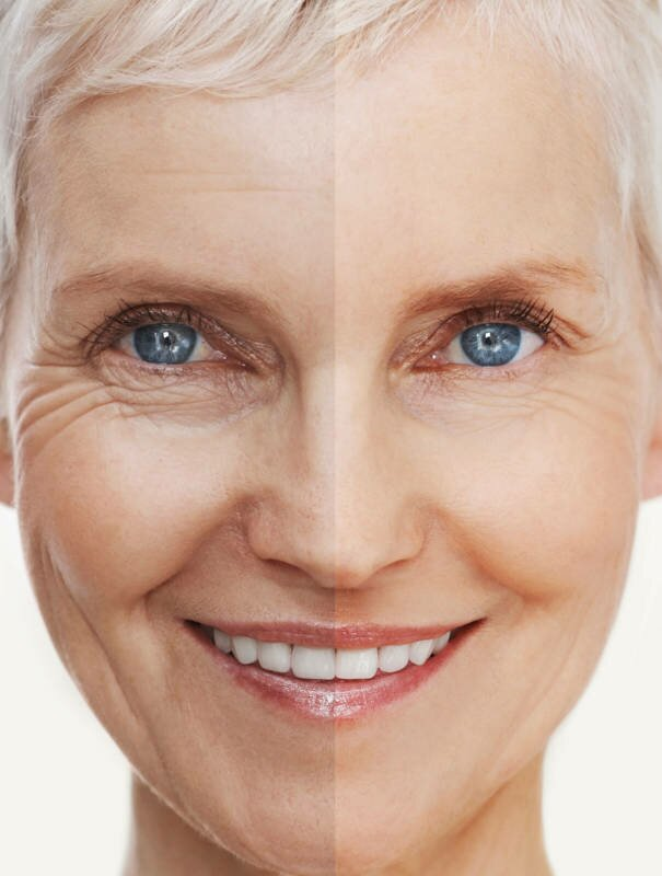 WHAT IS THE DIFFERENCE BETWEEN ANTI-WRINKLE AND FILLERS?