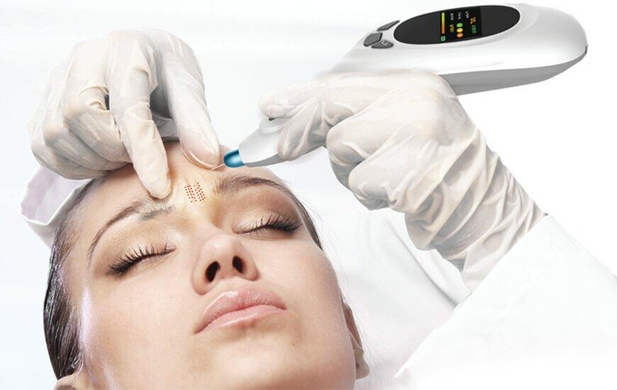 Explore the new plasma procedure revolutionising skin treatment